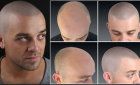 Кому необходим татуаж головы имитирующий волосы