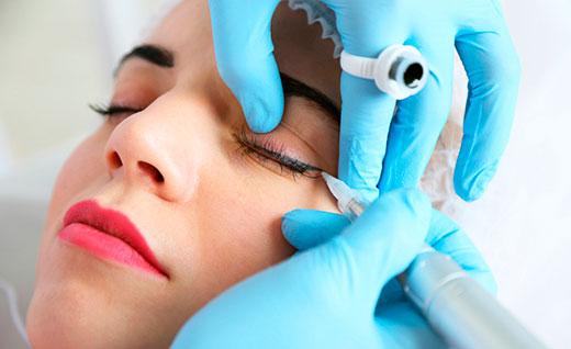 Анестезия при татуаже: виды, необходимость и противопоказания