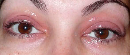 болят глаза после процедуры