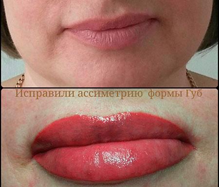 исправление неудачного татуажа губ