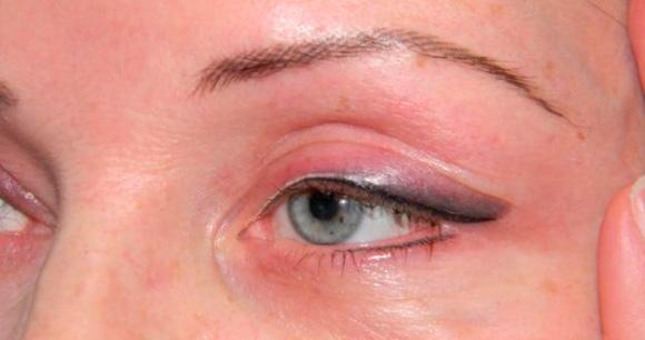 Могут быть отеки после татуажа глаз