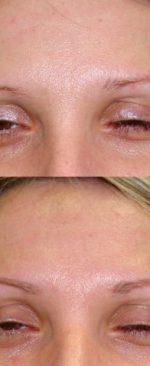 оптимальная форма бровей для лица