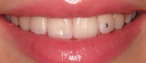 пирсинг для зубов со стразом