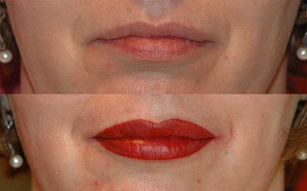 красные губы после татуажа