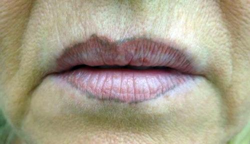 последствия от татуажа губ