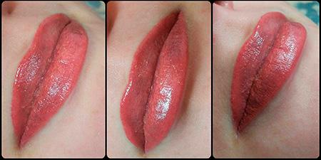красивые губы после процедуры
