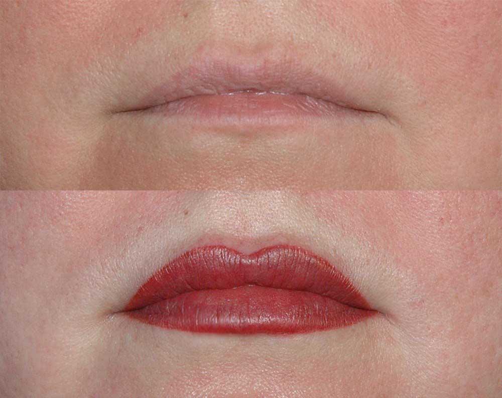 изменение формы тонких губ
