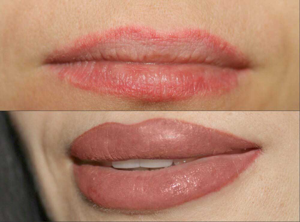 улучшение контура губ