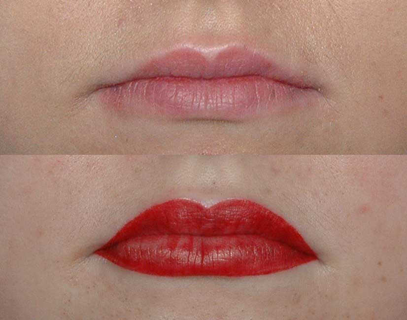 коррекция формы губ и яркий цвет