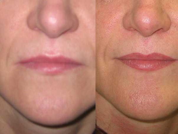 четкий контур губ после процедуры