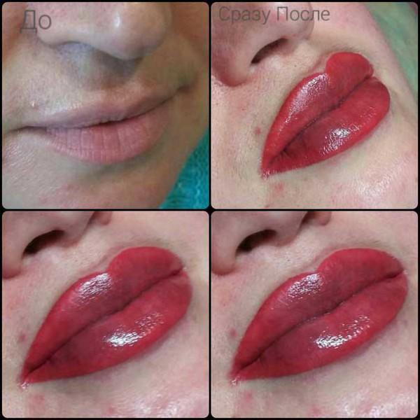 уход за губами фото до и после