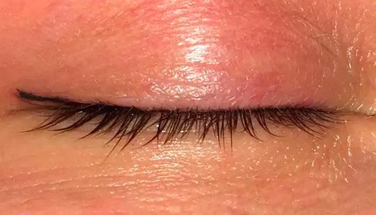 недостатки татуажа глаз