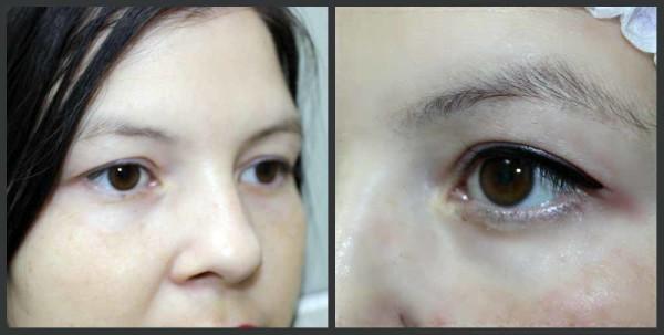 глаза после татуажа век