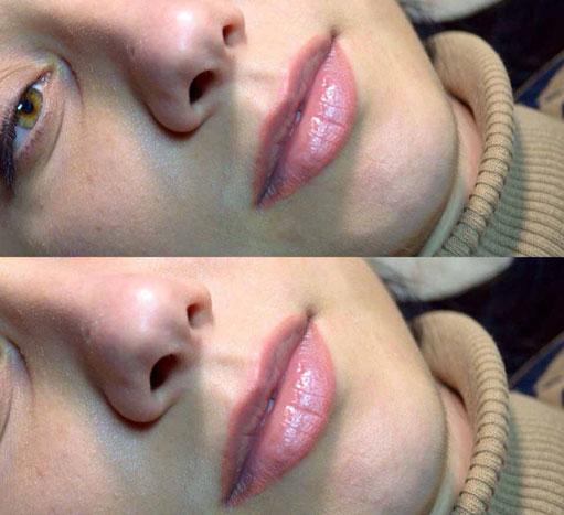 губы после микроблейдинга