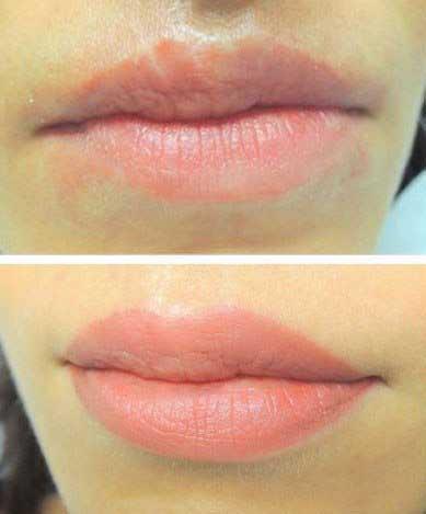 розовые губы после татуажа