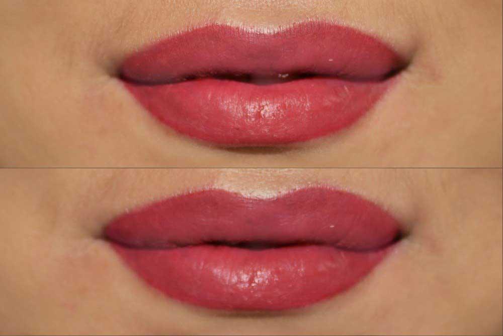 губы после заживления