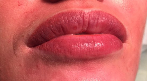 как ухаживать за губами после татуажа