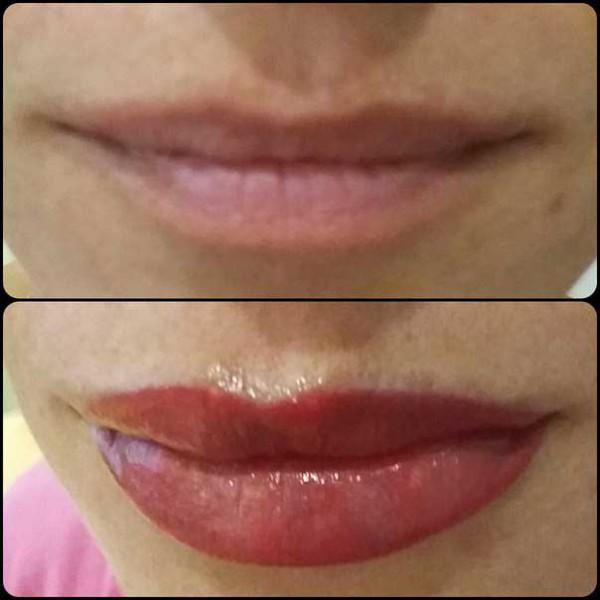 какие губы после процедуры
