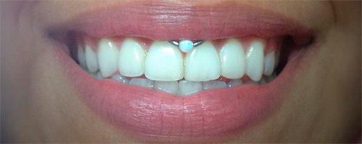 кольцо внутри губы