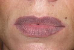 неправильный татуаж губ