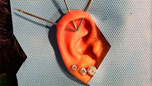 процесс прокола уха