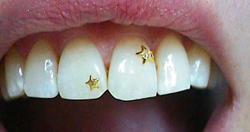 фото скайса на зубе