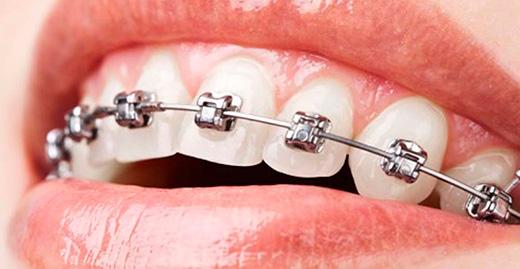необычный скайс зубов