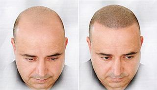 татуаж головы фото до и после
