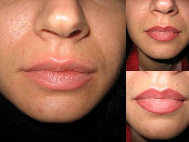 увеличение верхней губы татуажем