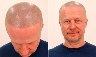 татуаж волос на голове
